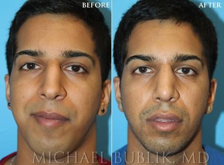 Dr. Firouz - Beverly Hills Plastic Surgeon | Los Angeles ...