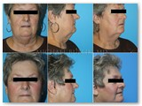 Fat Transfer, Facelift, Necklift and Liposuction