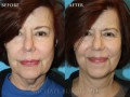 Clinical History:  This patient underwent a facelift, necklift, and submental liposuction.  You can see an improvement in her neck contour, jaw line and overall facial appearance.  She is very happy with her results.