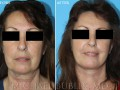 Neck and Face Liposuction