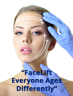 Facelift by Dr. Bublik Los Angeles