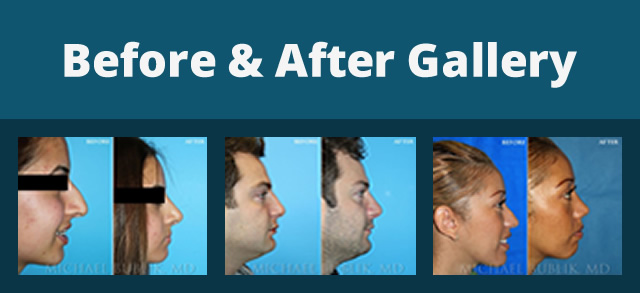Before and After Plastic Surgery Photos Los Angeles