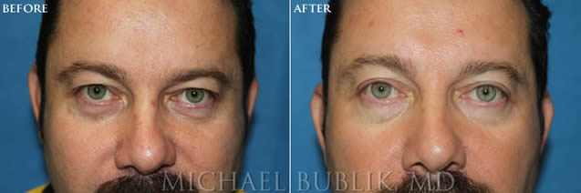 Blepharoplasty Surgeon Before After Picture