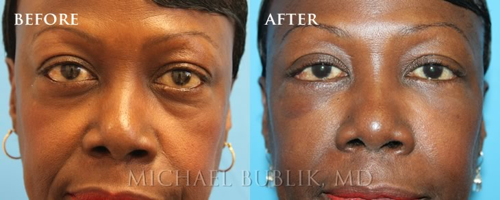 Before and After Blepharoplasty performed by Dr. Bublik