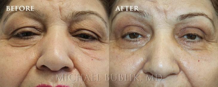 Hills surgery Beverly facial reconstructive