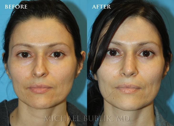 The Complete Nose Job Los Angeles, Beverly Hills, Glendale CA
