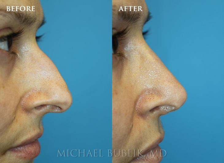 the complete nose job los angeles beverly hills glendale ca