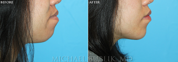 Chin Augmentation Glendale, Los Angeles