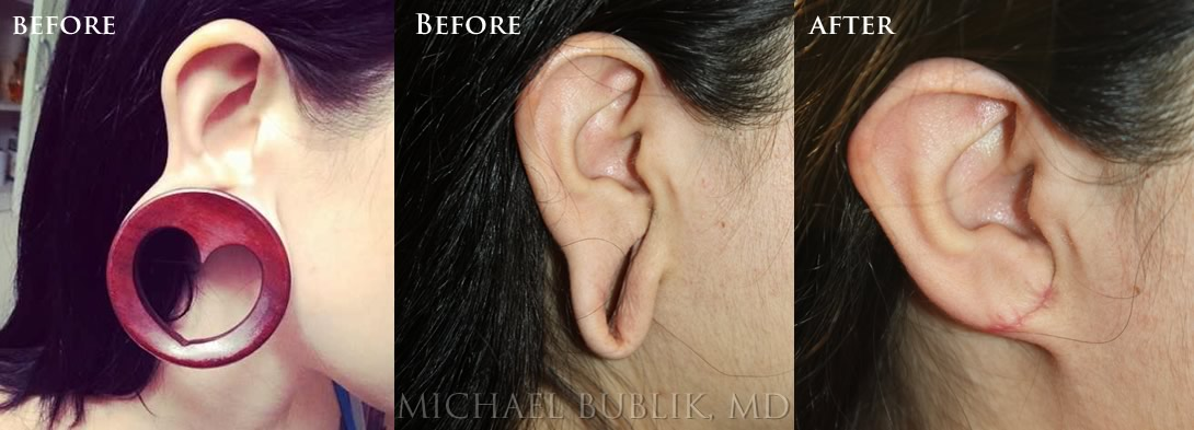 Ear Lob Repair by Dr. Michael Bublik