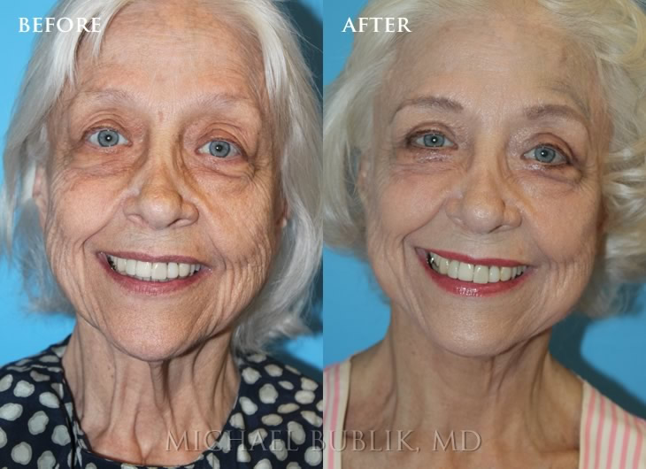 Facelift Specialist Los Angeles, Beverly Hills, Glendale CA