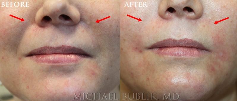 Facial Filler Restylane Nasolabial Folds and Marionette