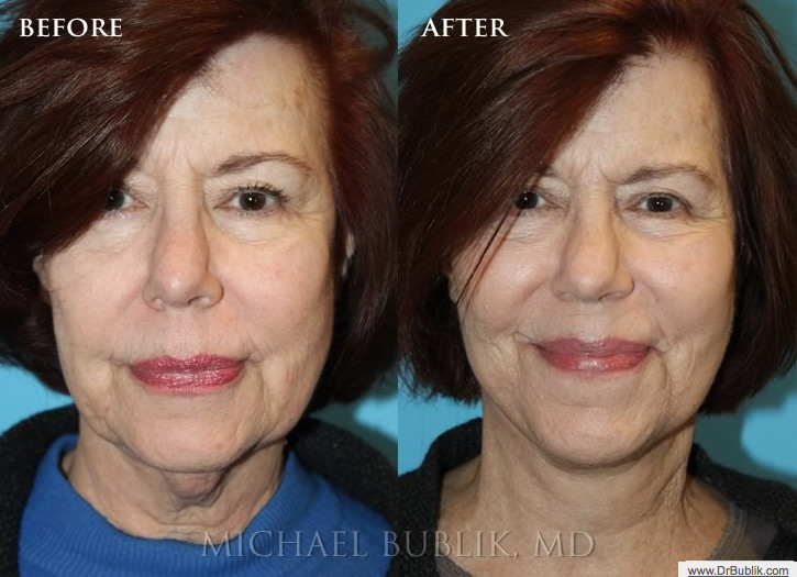 Facial liposuction los angeles
