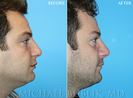 Male Rhinoplasty Glendale