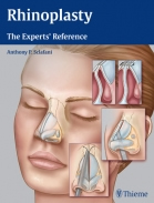 Rhinoplasty Reference Guide