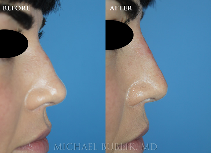 Non Surgical Nose Job with Restylane Filler