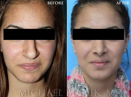 Teenage Rhinoplasty