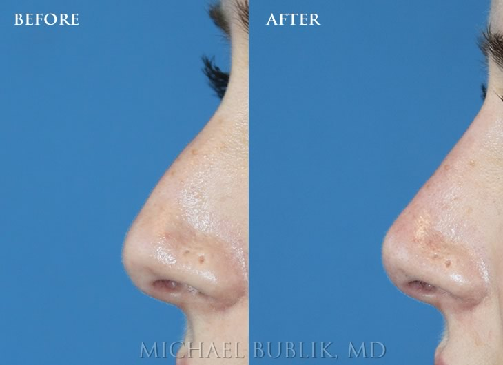 Nose Job using Fillers by Dr. Michael bublik