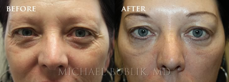 Under Eye Filler (Tear Trough) Before and After Photo