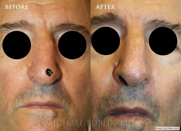 Los angeles facial reconstructive surgeon