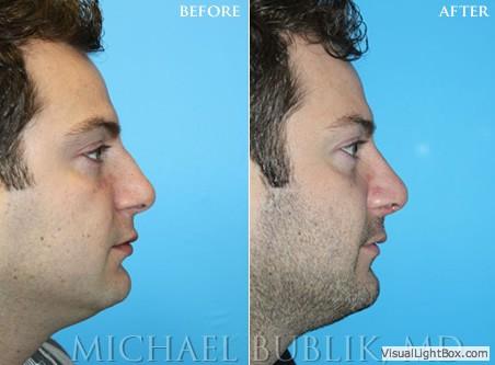 Rhinoplasty | Nose Surgeon | Dr. Grigoryants