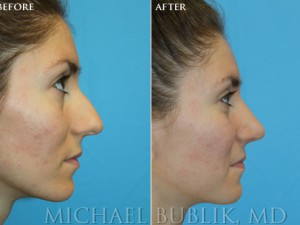 Clinical History: Healthy female with difficulty breathing through the nose, nasal hump, and wide nasal tip Procedures: Rhinoplasty with hump reduction (full osteotomies), and tip-plasty using dome unit sutures, septal cartilage grafts, and paradomal trim. Graft Types: Columellar strut, spreader graft.