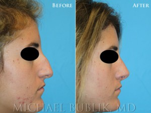 Healthy female with difficulty breathing through the nose, crooked nose, nasal hump. Procedures: Rhinoplasty with hump reduction (full osteotomies), and tip-plasty using dome unit sutures, septal cartilage grafts, and paradomal trim. Graft Types: Columellar strut, spreader grafts.