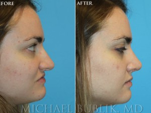 Clinical History: Healthy female with nasal obstruction (deviated septum, enlarged turbinates),  overprojected dorsum (nasal hump), and complained of a short upper lip and long nose. Procedures: External (open) rhinoplasty with hump reduction (full osteotomies), septoplasty , multiple cartilage augmentation grafts, turbinate reduction, tongue in groove setback of columella (base of nose) to lengthen upper lip, and de-projection and rotation of tip. Graft Types: Columellar strut, spreader graft.