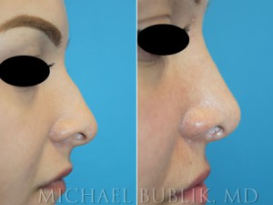 Healthy female with difficulty breathing through the nose, crooked nose, nasal hump.   Procedures: Rhinoplasty with hump reduction (full osteotomies), and tip-plasty using dome unit sutures, septal cartilage grafts, and paradomal trim. Graft Types: Columellar strut, spreader graft.