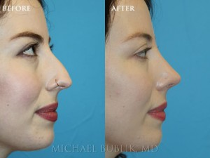 "Clinical Summary: This young lady had a rhinoplasty (""nose reshaping').  She had a nasal bump, droopy and wide nasal tip, and was not able to breath well through her nose.   She underwent rhinoplasty, septoplasty, and turbinate reduction. You can see how she no longer has a nasal bump and her tip is no longer droopy or wide. She was very happy with her outcome and it is evident in her eyes."