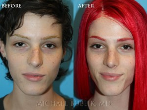 "Clinical History:  This young lady had a rhinoplasty (""nose reshaping'). She had a nasal bump, crooked nose, droopy and wide nasal tip, and was not able to breath well through her nose. She underwent rhinoplasty, septoplasty, and turbinate reduction. You can see how she no longer has a nasal bump and her tip is no longer droopy or wide. She was very happy with her outcome and it is evident in her eyes.  In addition, on the lateral view you can see how the ""morphe"" images that are discussed in the preoperative visit approximate the final result."
