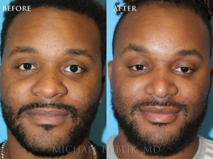 Clinical History:  This patient came in complaining of a wide nose, droopy tip, nasal bump and airway obstruction.  He underwent rhinoplasty (nose reshaping), septoplasty and turbinate reduction.  The nose is narrower in appearance, the tip is naturally elevated and the bridge is straight.  He is very happy with his result.