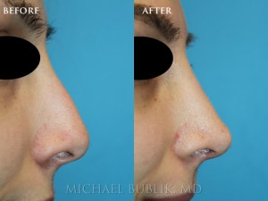 Clinical History: This patient had nose reshaping (rhinoplasty) for a droopy tip and nasal bump. She was very happy with her results.