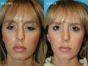 "Clinical History: Young female patient underwent nose reshaping (""rhinoplasty"") for a droopy tip, nasal bump and wide tip. As you can see the nasal tip has been elevated, bump reduced, the tip narrowed to give a more natural female appearing nasal profile. She was very happy with her result and quick and painless recovery. She also had a septoplasty and turbinate reduction for breathing issues."