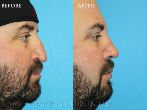"Clinical Summary: This gentleman had a septoplasty, turbinate reduction and rhinoplasty (""nose reshaping'). He had a very droopy tip that was obstructing his breathing and a nasal bump. He underwent rhinoplasty, septoplasty, and turbinate reduction. You can see how he no longer has a nasal bump and his tip position. She was very happy with her outcome and it is evident in her eyes."