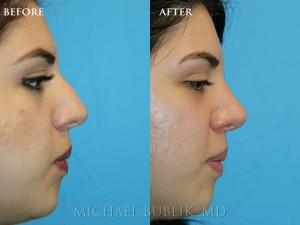 "Clinical History: Young female patient with very thick skin underwent nose reshaping (""rhinoplasty"") for a droopy tip, nasal bump and wide tip. As you can see the nasal tip has been elevated, bump reduced, the tip narrowed to give a more natural female appearing nasal profile. She was very happy with her result and quick and painless recovery and the result was achieved even with a thick skin nose."
