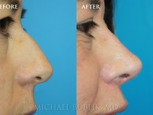 "Clinical History:  Young female patient underwent nose reshaping (""rhinoplasty"") for a droopy tip, nasal bump and wide tip.  As you can see the nasal tip has been elevated, bump reduced, the tip narrowed to give a more natural female appearing nasal profile.   She was very happy with her result and quick and painless recovery."