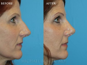 "Clinical history:  This lady had a long standing history of nasal breathing difficulty and concerns about her nasal bump and slightly over projected nasal tip.  She underwent rhinoplasty (""nose job""), septoplasty, and turbinate reduction. She was very happy with the result."