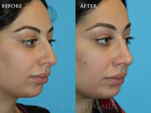 "Clinical History:  This patient underwent a rhinoplasty (""nose job"") and chin implant.  She complained of large nasal bump, droopy tip, and small chin.  She had quick healing and recovery.  You can notice on the postop pictures that the nasal bump was removed on the bridge of the nose, the tip was raised, then chin was given more projection, and her overall result was a more feminine and natural appearing nose. -2018-14"
