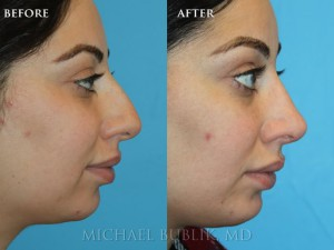"Clinical History:  This patient underwent a rhinoplasty (""nose job"") and chin implant.  She complained of large nasal bump, droopy tip, and small chin.  She had quick healing and recovery.  You can notice on the postop pictures that the nasal bump was removed on the bridge of the nose, the tip was raised, then chin was given more projection, and her overall result was a more feminine and natural appearing nose."