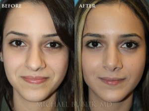 This is a 3 year follow up on a patient who had rhinoplasty (nose reshaping).  She presented with a wide and droopy nasal tip with nasal bump.  She achieved a beautiful result that is natural, feminine and stunning.