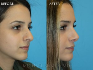 This young female underwent a nose reshaping (rhinoplasty).  She had a crooked nose with a dorsal hump and droopy tip.  The result is both natural and elegant.  She no longer has a long nose that is droopy, crooked and the nasal profile is feminine and natural appearing.