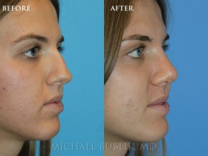 "Clinical history: Patient underwent nose reshaping (""rhinoplasty"") for a severely deviated crooked nose and septum and nasal hump. She now has a straight side and front profile and is able to breath well through a natural feminine appearing nose."
