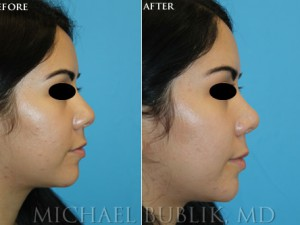 Clinical History: Healthy female one-year post-op pictures who initially presented with wide nasal bridge, nasal tip, nasal base, and wanted a small scoop to the nose. Procedures: External rhinoplasty with width reduction, tip-plasty using dome unit sutures and septal cartilage grafts, and base reductions without a visible scar. Graft Types: Columellar strut.