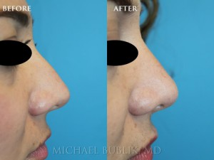"Clinical History: This young lady complained of a dorsal bump (""hump""), a wide nasal base and a generally wide tip and nose.  She also had breathing problems due to a deviated septum and large inferior turbinates.  She underwent incision-less rhinoplasty (no external scars or incisions), septoplasty, and turbinate reduction. You can see how she no longer has a nasal bump and her tip is narrower and more refined."