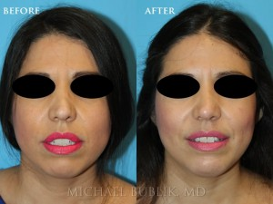 Clinical Summary:  This young lady had a revision rhinoplasty with ear cartilage grafting.  She had prior rhinoplasty and was not satisfied with the persistent nasal bump on the bridge of her nose and droopy tip.  She also had breathing problems due to a persistent deviated septum and large inferior turbinates.  She underwent revision rhinoplasty septoplasty, and turbinate reduction with ear cartilage grafting. You can see how she no longer has a nasal bump and her tip is no longer droopy.