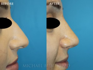 Clinical History:  Incision-less rhinoplasty (no external scars) with excellent profile (side view) alignment without swelling or external scars.  Patient was unhappy with the dorsal bump and droopy tip.