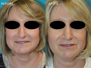 Clinical History: This middle aged women wanted a refreshed look.  She underwent rhinoplasty by Dr. Bublik.  She had a dorsal bump, asymmetric tip (as seen from the base view) and a droopy tip that is usually associated with the nasal aging process.  Dr. Bublik was able to achieve a more natural and youthful appearing nose with minimal downtime.