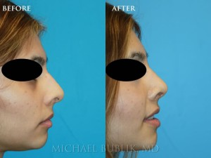 Clinical History: This young lady wanted to have a straighter nose, a better looking side profile, and better breathing. You can see in her photo from the side that she has nasal bump and a droopy tip. . She also had breathing problems due to a deviated septum and large inferior turbinates.  She underwent incision less rhinoplasty (no external scars or incisions), septoplasty, and turbinate reduction. You can see how she no longer has a nasal bump and her tip is no longer droopy.