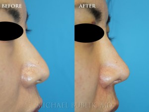 Clinical History: This young Asian American female desired a more western nose. She complained of droopy nasal tip, dorsal bump and wide tip.   She also had breathing difficulty and sinus issues and underwent external rhinoplasty, septoplasty, and turbinate reduction to help with her cosmetic and functional nasal concerns. Her results shows a natural appearing nose which is more refined, has more tip definition and strength and more of a supra-tip break giving her more of a feminine appearing nasal profile.