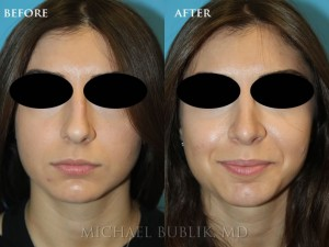 Clinical History: This young woman wanted to have her tip refined, large bump improved as well as a more elegant nose for a more balanced facial appearance. She also had difficulty breathing and sinus infections. She underwent rhinoplasty, septoplasty, and turbinate reduction. She wanted a straight profile with a minor supra-tip break. This means that the tip comes off the bridge of the nose slightly. The tip was also rotated upwards for a more feminine appearing nose. She was very happy with her result and it made her delicate facial features look even more refined without any drastic changes.